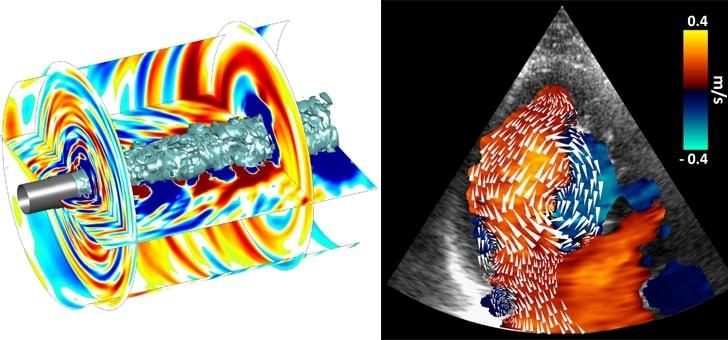 simulations-numeriques-bruit-cree-par-un-jet-de-reacteur-d-avion-a-gauche-imagerie-par-ultrasons-visualisation-de-ecoulement-intraventriculaire-a-droite