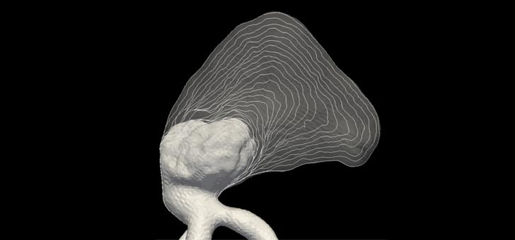 virtual-modelling-of-thrombus-onion-skin