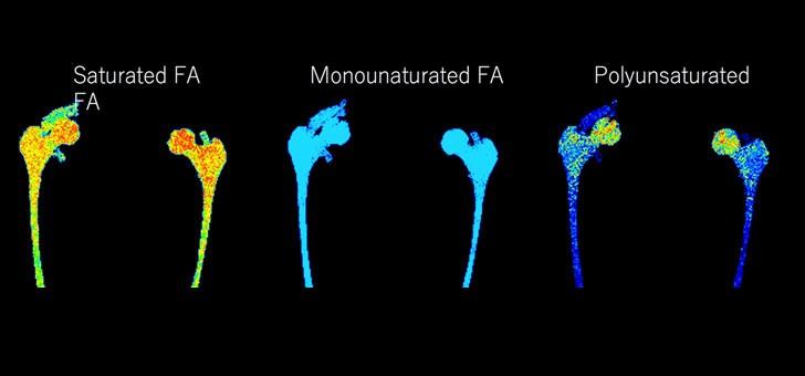 first-3d-mri-quantitative-lipid-profiling
