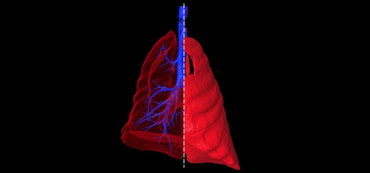 lung-and-airway-segmentation-in-a-ct-scan