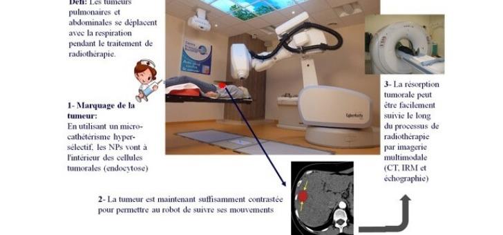 traitement-des-tumeurs-mobiles
