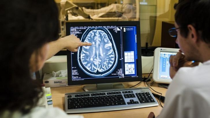 diagnostic-de-sep-etude-du-cerveau