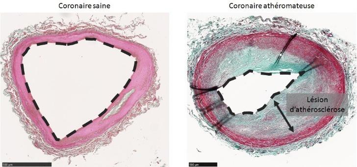 coupes-transversales-d-arteres-coronaires-humaines