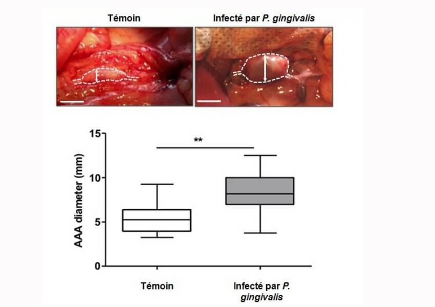 une-region-de-aorte-anevrisme-chez-rat