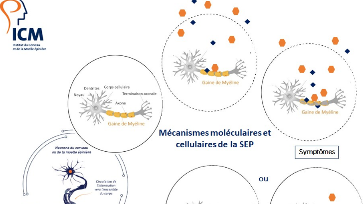 mecanisme-d-evolution-de-sclerose-plaques