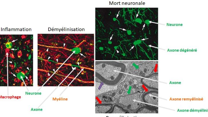 sep-resulte-de-inflammation-du-systeme-nerveux-central