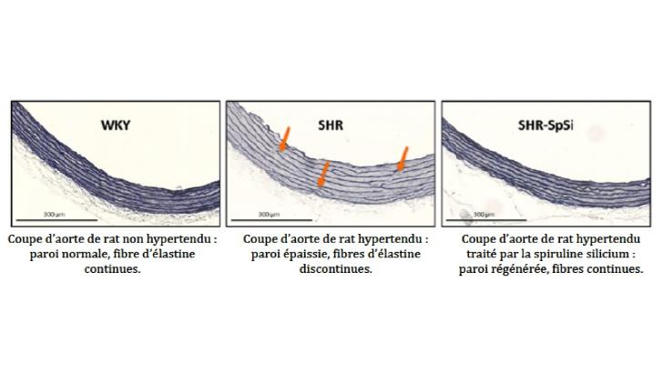 coupe-d-aortes-des-rats-temoins-et-rats-traites-avec-spiruline-enrichie-silicium