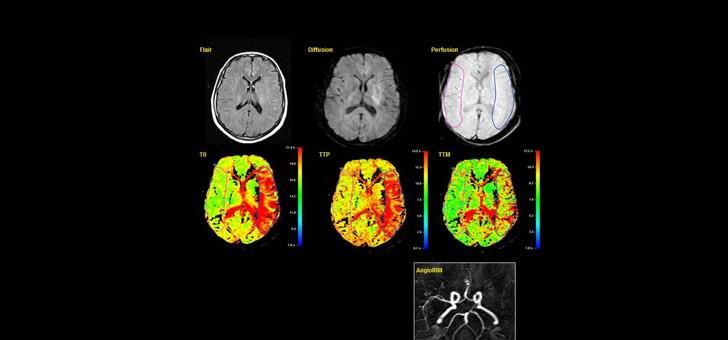 scanner-du-cerveau
