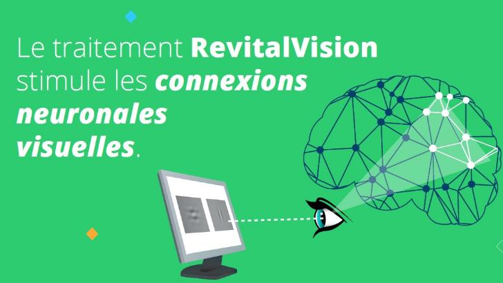 revitalvision-augmenter-acuite-visuelle-sollicitant-neurones-et-connectiques-interneuronales-corticales