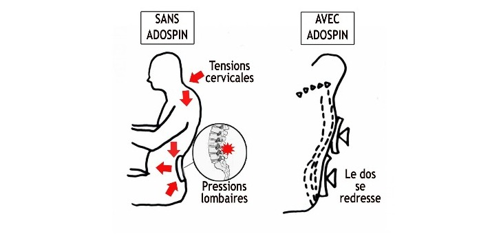 adospin-ameliore-posture-agissant-sur-tensions-cervicales