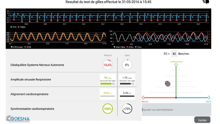 codesna-dispositif-pour-mesurer-2minutes-chrono-tout-type-de-stress